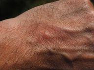 Pusteln und Rötungen können Anzeichen einer Histaminintoleranz sein