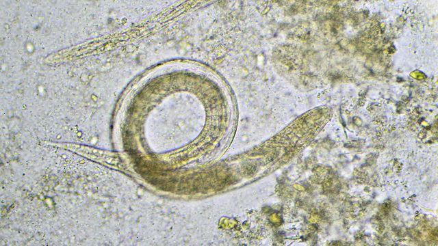 Nematoden sind mit bloßem Auge nur schwer zu erkennen.
