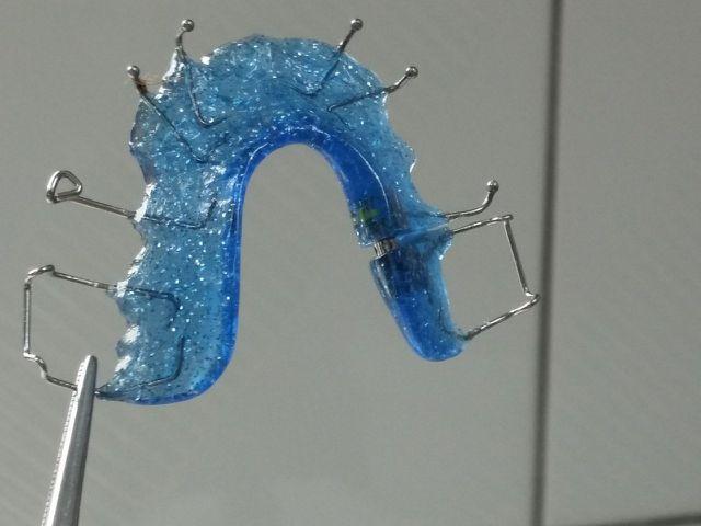 Eine lose Zahnspange kannst du in einer Essig-Wasser-Mischung reinigen.