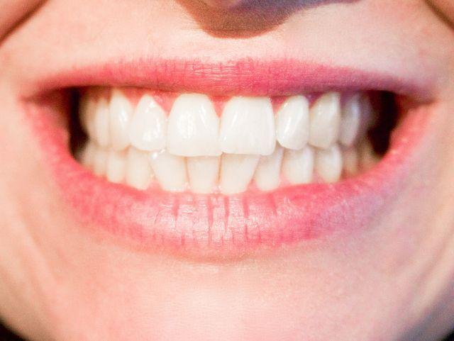 H2O2 hilft Wunden im Mundraum zu heilen und hellt die Zähne auf.