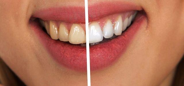 Natural teeth whitening home remedies methods brighten whitened teeth