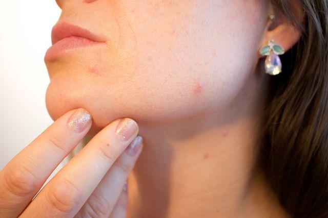 Anfassen verboten! Berühre Pickel am Hals und im Gesicht nicht mit dreckigen Fingern.
