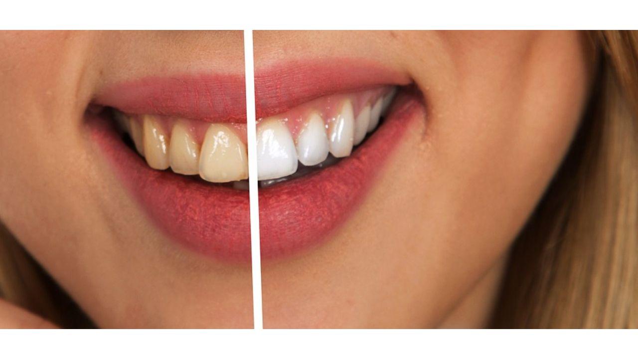 Mit schlechte 20 zähne Wie behandelt