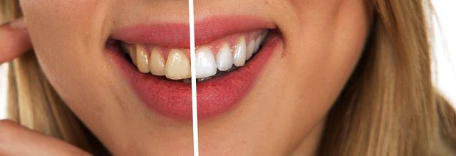 Gesundes Zahnfleisch sieht rosig aus und liegt fest an den Zahnhälsen an.