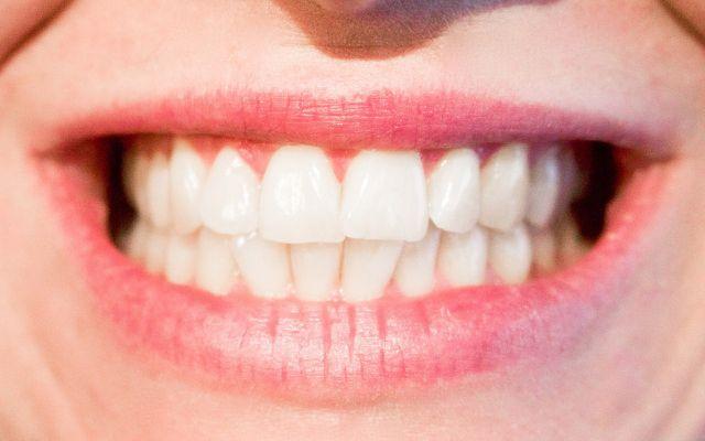 avoid teeth whitening home remedies