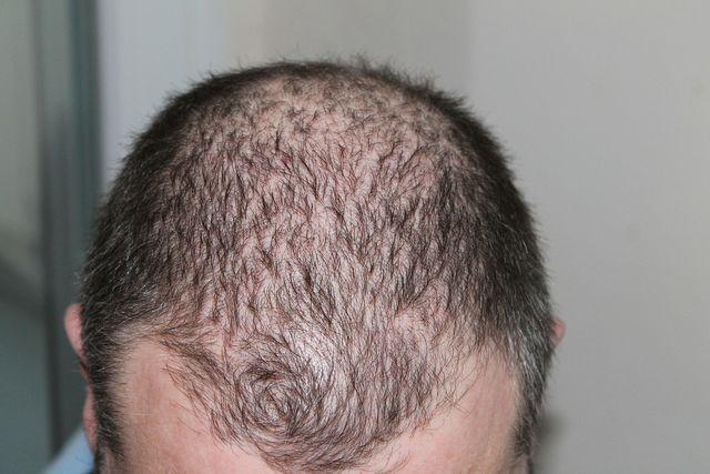 Knoblauch-Shampoo soll gegen Haarausfall helfen.