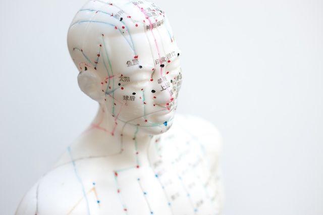 Mit Akupunktur Abnehmen Was Ist Dran Utopiade