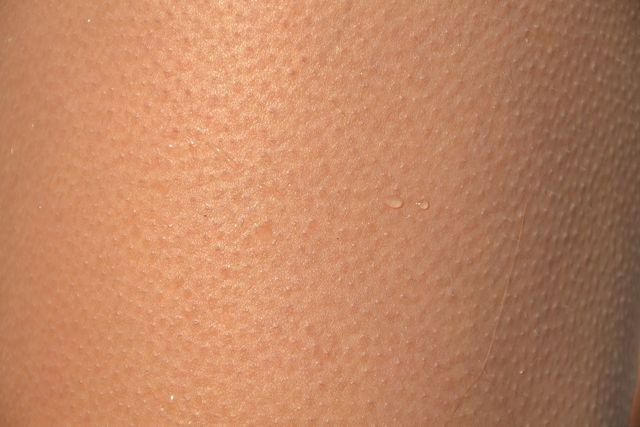 Vaseline trocknet Haut aus