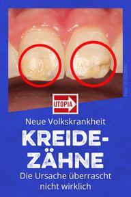 """Neue Volkskrankheit """"Kreidezähne"""": Die Ursache überrascht nicht wirklich"""