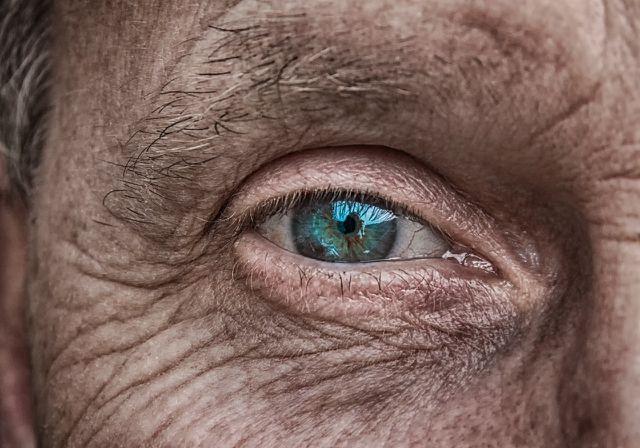 Oft verliert die Haut im Alter an Feuchtigkeit und trocknet zunehmend aus.