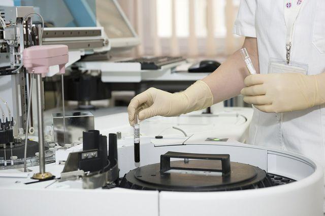 Ein ADI-Wert benötigt eine Reihe von Versuchen im Labor.