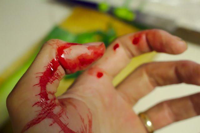 Alltagsverletzungen