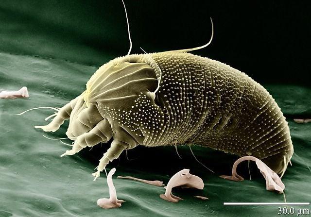 Eine Hausstaubmilbe unter einem Mikroskop.